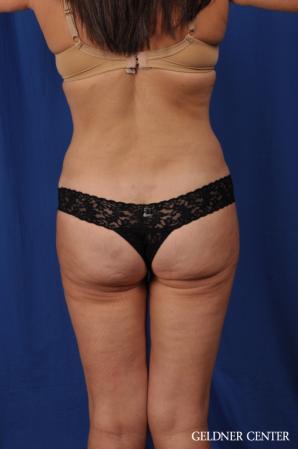 Liposuction: Patient 43 - After 4