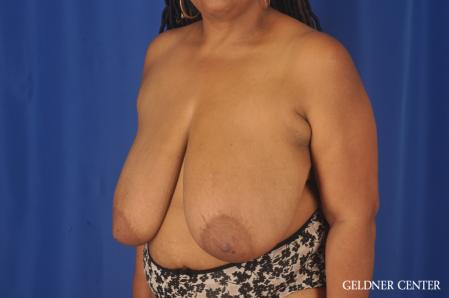 Breast Reduction: Patient 22 - Before and After Image 4