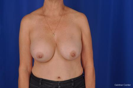 Breast Augmentation Lake Shore Dr, Chicago 2057 - Before Image