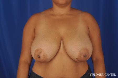Breast Reduction Lake Shore Dr, Chicago 9099 - Before Image