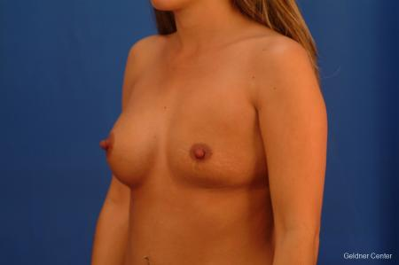 Chicago Breast Augmentation 2526 - Before Image 3