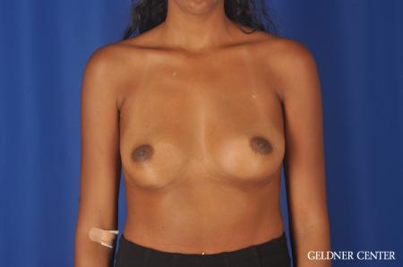 Chicago Breast Augmentation 11869 - Before Image 1