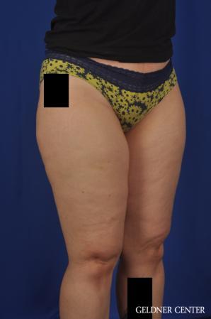 Liposuction: Patient 44 - Before Image 2