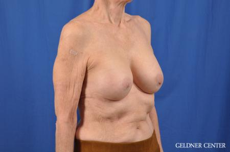 Breast Augmentation: Patient 138 - After Image 3