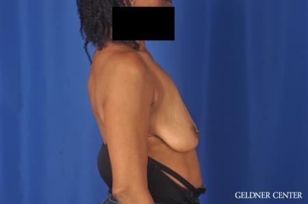 Breast Lift: Patient 22 - Before Image 2