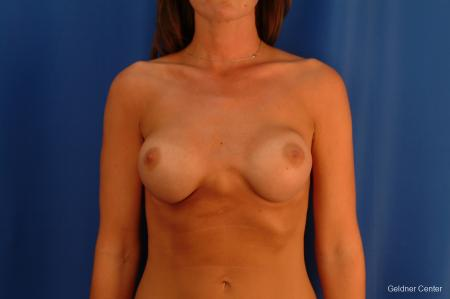 Complex Breast Augmentation Streeterville, Chicago 2620 - Before Image 1