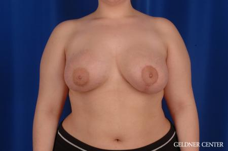 Chicago Complex Breast Augmentation 2616 -  After Image 1