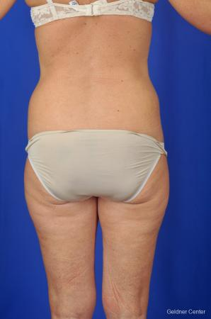 Liposuction: Patient 4 - Before and After Image 4