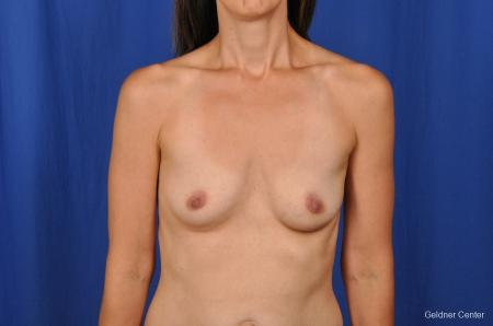 Chicago Breast Augmentation 2376 - Before Image 1