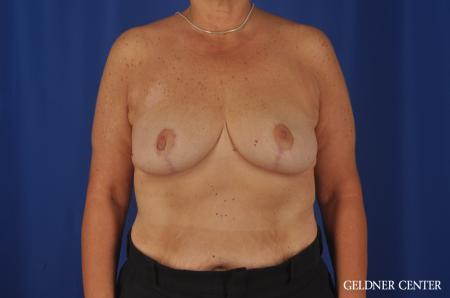 Breast Reduction Lake Shore Dr, Chicago 3223 - After Image