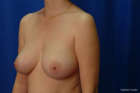 Chicago Breast Augmentation 2413 -  After Image 4