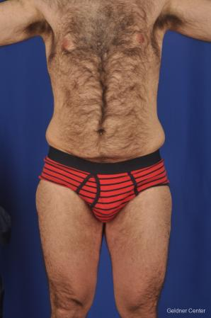 Abdominoplasty-for-men: Patient 1 - Before Image