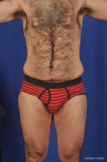 Abdominoplasty-for-men: Patient 1 - Before Image