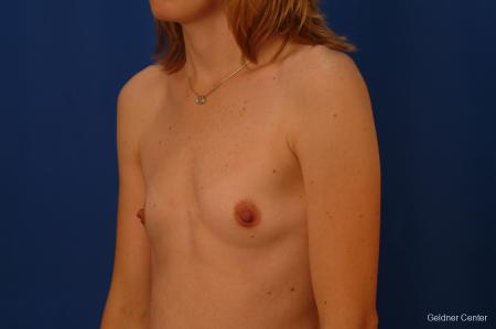 Breast Augmentation Streeterville, Chicago 2530 - Before and After Image 4