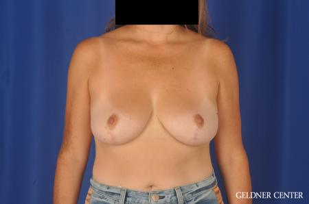 Breast Reduction: Patient 13 - After Image 1