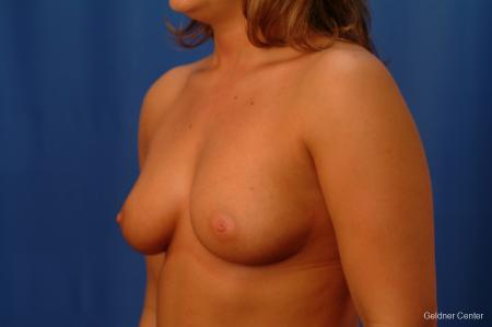 Chicago Breast Augmentation 2633 - Before Image 4
