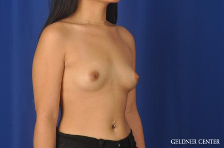 Breast Augmentation: Patient 146 - Before Image 3