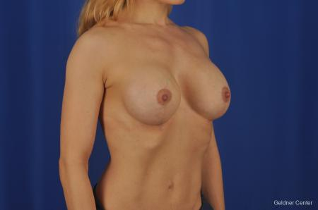 Chicago Complex Breast Augmentation 2073 -  After Image 3