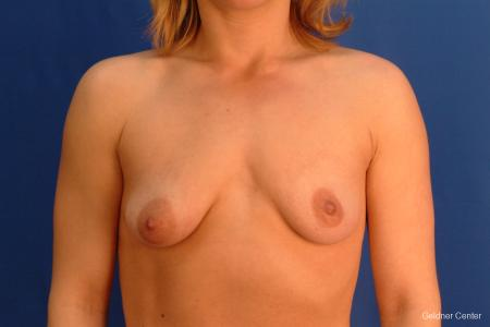 Breast Augmentation Lake Shore Dr, Chicago 2637 - Before Image 1