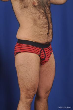 Abdominoplasty For Men: Patient 1 - Before Image 2