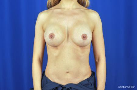 Chicago Breast Lift 2072 -  After Image 1