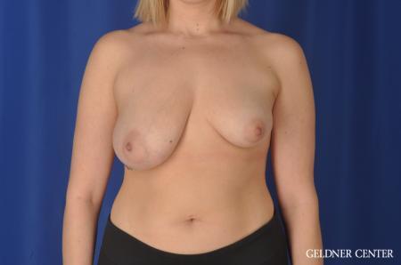 Complex Breast Augmentation: Patient 34 - Before Image 1