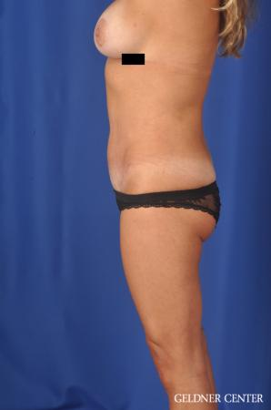 Abdominoplasty: Patient 5 - After Image 3