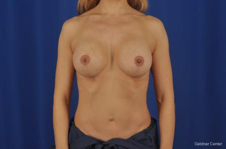 Chicago Complex Breast Augmentation 2073 - After Image