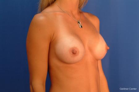 Breast Augmentation Hinsdale, Chicago 2510 -  After Image 3