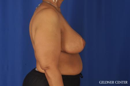 Breast Reduction: Patient 25 - After Image 3
