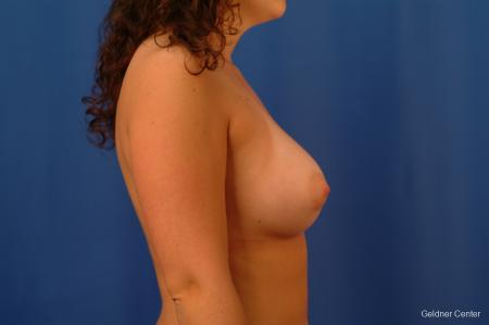 Chicago Breast Augmentation 2517 -  After Image 2