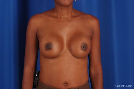 Chicago Breast Augmentation 2293 -  After Image 1