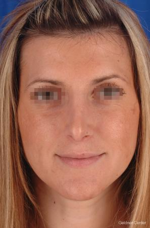 Rhinoplasty: Patient 5 - After Image 1