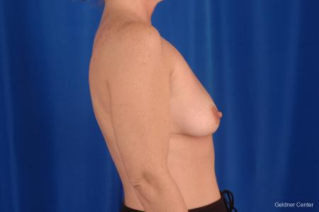 Breast Lift Lake Shore Dr, Chicago 2308 - Before Image 2