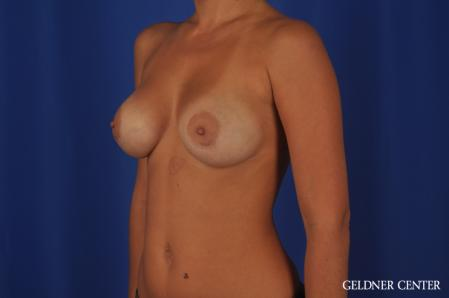 Breast Augmentation: Patient 109 - After Image 4