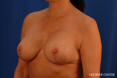 Chicago Breast Lift 2617 -  After Image 5