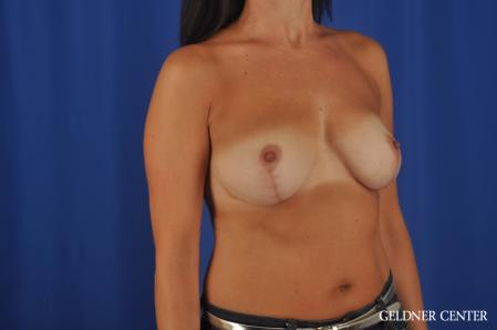 Breast Lift: Patient 48 - After Image 2