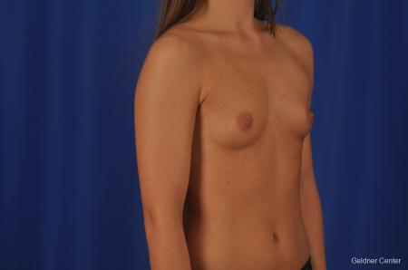 Breast Augmentation Streeterville, Chicago 3231 - Before Image 3