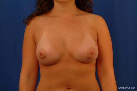 Chicago Breast Augmentation 2517 -  After Image 1