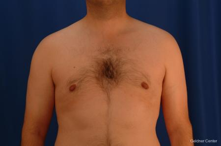 Gynecomastia: Patient 4 - After Image 1