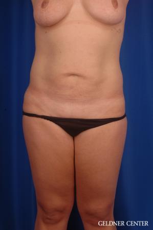 Liposuction: Patient 46 - After Image 1