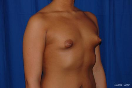 Breast Augmentation: Patient 156 - Before Image 2