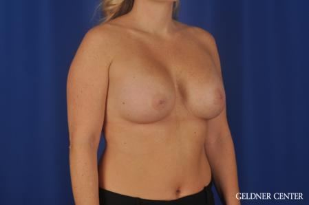 Breast Augmentation: Patient 184 - After Image 2