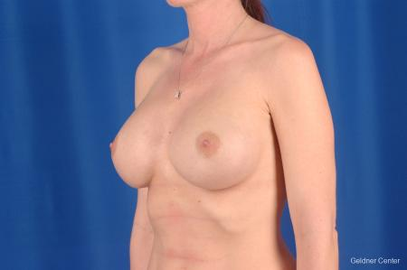 Complex Breast Augmentation Streeterville, Chicago 2620 -  After Image 5