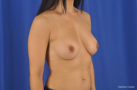 Breast Augmentation Hinsdale, Chicago 2299 -  After Image 3