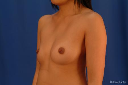 Underarm Breast Augmentation Streeterville, Chicago 2621 - Before and After Image 4