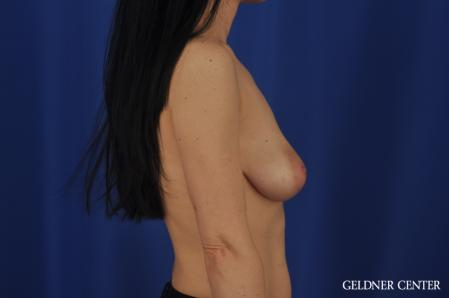 Breast Lift: Patient 52 - Before Image 3