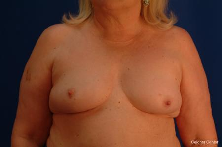Complex Breast Augmentation Hinsdale, Chicago 2430 - Before Image 1