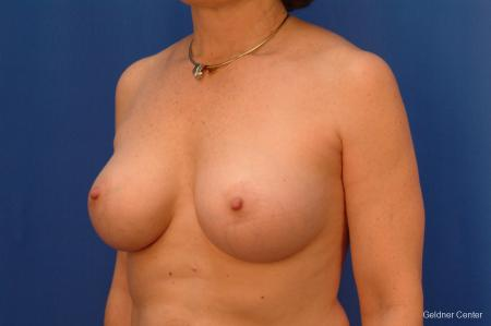 Breast Augmentation Hinsdale, Chicago 2541 -  After Image 4