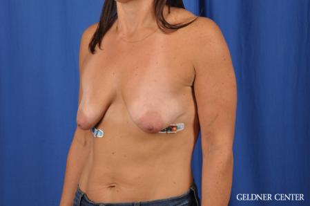 Breast Lift: Patient 42 - Before and After Image 4